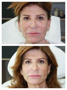 Lifting Facial Silhouette Soft - Cliché avant