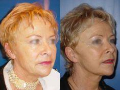 Lifting du visage - Cliché avant - Dr Hervé Raspaldo