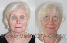 Lifting du visage - http://www.chirurgie-esthetique-nice.fr/chirurgie-esthetique/chirurgie-du-visage/liftings-du-visage/