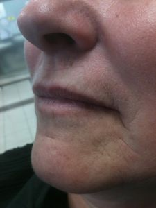 Augmentation des lèvres - Cliché avant - Dr Jérôme Quezel-Guerraz