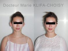 Otoplastie (Chirurgie esthétique des oreilles) - Cliché avant - Dr Marie Klifa-Choisy