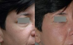 Injections de comblement - Cernes par relâchement cutané et descente modérée de la graisse de la pommette