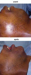 Augmentation des lèvres - Cliché avant - Dr Yohann Derhy