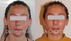 Otoplastie (Chirurgie esthétique des oreilles) - http://www.chirurgie-esthetique-nice.fr/chirurgie-esthetique/chirurgie-du-visage/otoplastie-oreilles-decollees/