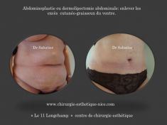 Abdominoplastie - enlever tout l