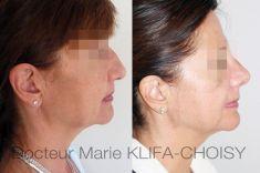 Rhinoplastie - http://www.chirurgie-esthetique-nice.fr/chirurgie-esthetique/chirurgie-du-visage/rhinoplastie/http://www.chirurgie-esthetique-nice.fr/chirurgie-esthetique/chirurgie-du-visage/rhinoplastie/