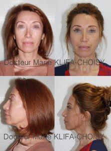 Lifting du cou - Cliché avant - Dr Marie Klifa-Choisy