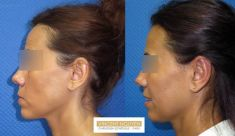 Otoplastie (Chirurgie esthétique des oreilles) - Cliché avant - Dr Vincent Nguyen