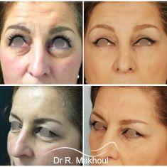 Blépharoplastie - Comblement du creux des cernes, redrapage cutané, rajeunissement du regard.