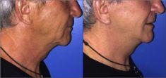 Lifting du visage - Cliché avant - Dr Alexandre Mertens