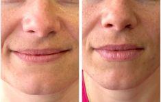 Augmentation des lèvres (acide hyaluronique) - remodelage complet des lèvres a l