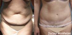 Abdominoplastie - Cliché avant - Dr Robin Mookherjee