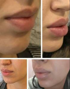 Augmentation des lèvres - Cliché avant - Dr Catherine Eychenne