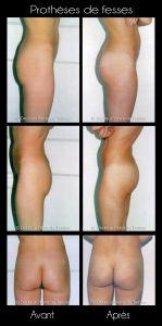 Augmentation et modelage des fesses et des hanches - Cliché avant - Dr Pierre de Taddeo