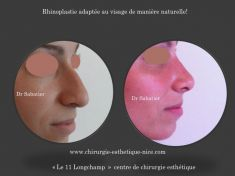 Rhinoplastie - Cliché avant - Dr Henry Sabatier
