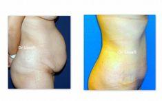 Abdominoplastie - Cliché avant - Dr Adel Louafi