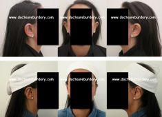 Otoplastie (Chirurgie esthétique des oreilles) - Cliché avant - Harold Eburdery