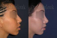 Rhinoplastie - Cliché avant - Dr Karim MAMLOUK