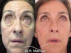 Blépharoplastie - Comblement du creux des cernes, redrapage cutané, rajeunissement spectaculaire du regard.