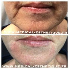 Anti-Aging - Cliché avant - Dr AMAT - ????Greffe FUE 2.0 Medic Xpert