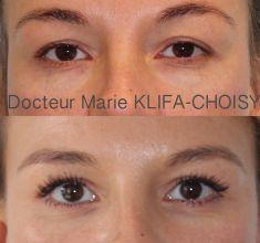 Blépharoplastie - Cliché avant - Dr Marie Klifa-Choisy