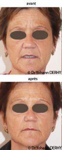 Traitement des rides - Toxine botulique, Dysport - Cliché avant - Dr Yohann Derhy