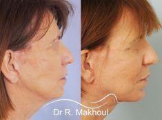 Lifting du cou - Abord sous-mental permettant un traitement optimal du cou.