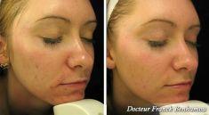 Traitement acné - laser - Cliché avant - Dr Franck Benhamou