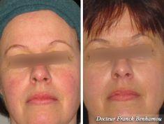 Suppression des veines par laser (taches de naissances, rougeurs) - Cliché avant - Dr Franck Benhamou