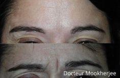 Injections de comblement - Cliché avant - Dr Robin Mookherjee