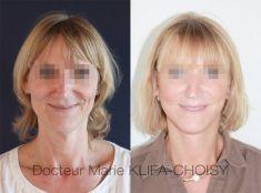 Lifting du visage - Cliché avant - Dr Marie Klifa-Choisy