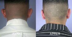 Otoplastie (Chirurgie esthétique des oreilles) - Cliché avant - Dr Fabrice Poirier