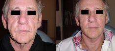 Lifting du visage - Cliché avant - Dr Frederic Braccini