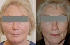 Lifting du visage - Lifting de la partie médiane du visage ayant une action sur l'excès de peau de la paupière inférieure, les poches, les cernes, la pommette, le sillon nasogénien, le pli d'amertume et la bajoue