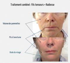Lifting visage Aptos - Cliché avant - Dr Elena Romanova