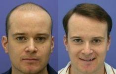 Greffe de cheveux - Implanter des cheveux: transplants capillaires: 4000 greffons selon la méthode microchirurgicale. Pas de cicatrices: la technique rend la procédure quasi invisible aux autres.