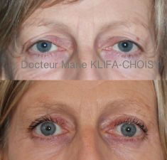 Dr Marie Klifa-Choisy - http://www.chirurgie-esthetique-nice.fr/chirurgie-esthetique/chirurgie-du-visage/blepharoplastie-chirurgie-des-paupieres/