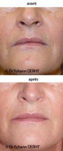 Lipofilling ou autogreffe de tissu graisseux - Cliché avant - Dr Yohann Derhy