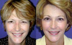 Lifting du visage - Courte procédure Lifting vertical Fil permanent (qui reste) pour Cranial Suspension