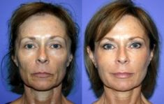Lifting non chirurgical (Liquid facelift) - Facelift liquide avec botox et injections