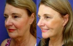 Lifting du visage - Facelift SMAS avec Lifting SMAS du cou