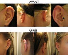 Otoplastie (Chirurgie esthétique des oreilles) - Cliché avant - Dr Christian Zuber
