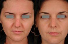 Dr Jacques Buis - Les muscles cibles sont ceux des sourcils et para nasaux Pas d