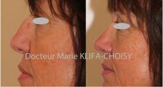Rhinoplastie - Cliché avant - Dr Marie Klifa-Choisy