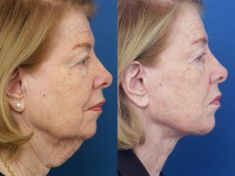 Lifting du visage - Cliché avant - Dr Frank Trepsat