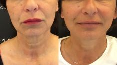 Lifting du visage - redrapage ovale et cou