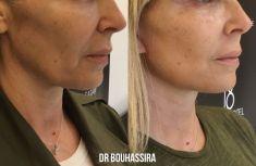 Lifting du visage - redrapage ovale du visage et cou