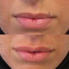 Augmentation des lèvres (injection de graisse) - Cliché avant - Dr Fabien Giausseran
