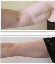 Lifting des bras - Cliché avant - Dr David Picovski
