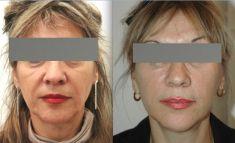 Lifting du visage - Lifting associant un lifting medio facial et un lifting cervico facial dans la même procedure